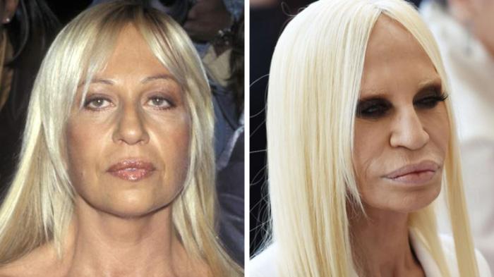 Donatella-Versace-avant-après